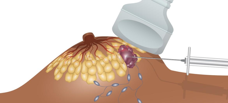 Halbseitige (unikondyläre oder Teil-) Prothese